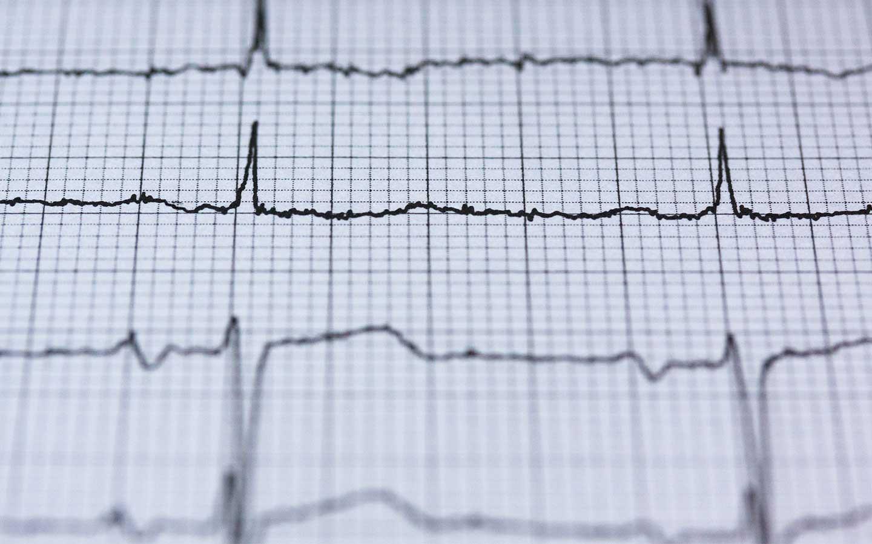 electrocardiograma tulum